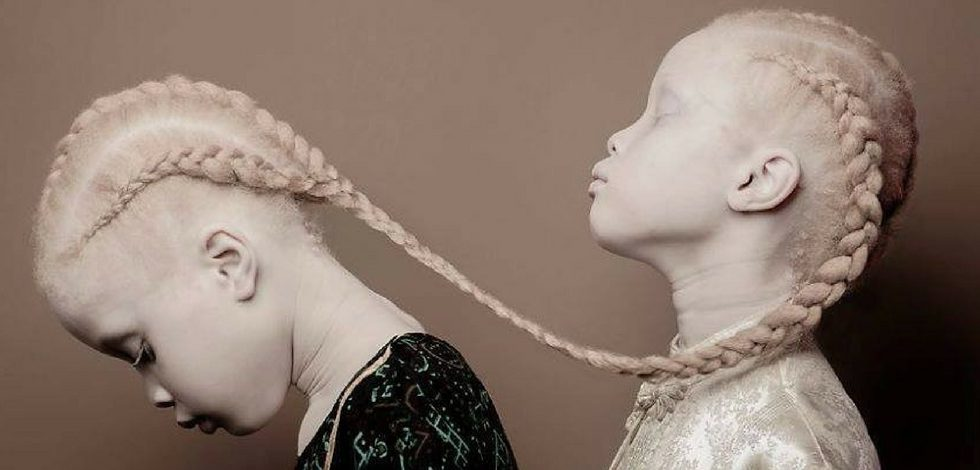 Fasion World being dazzled by Albino Twins from Brazil