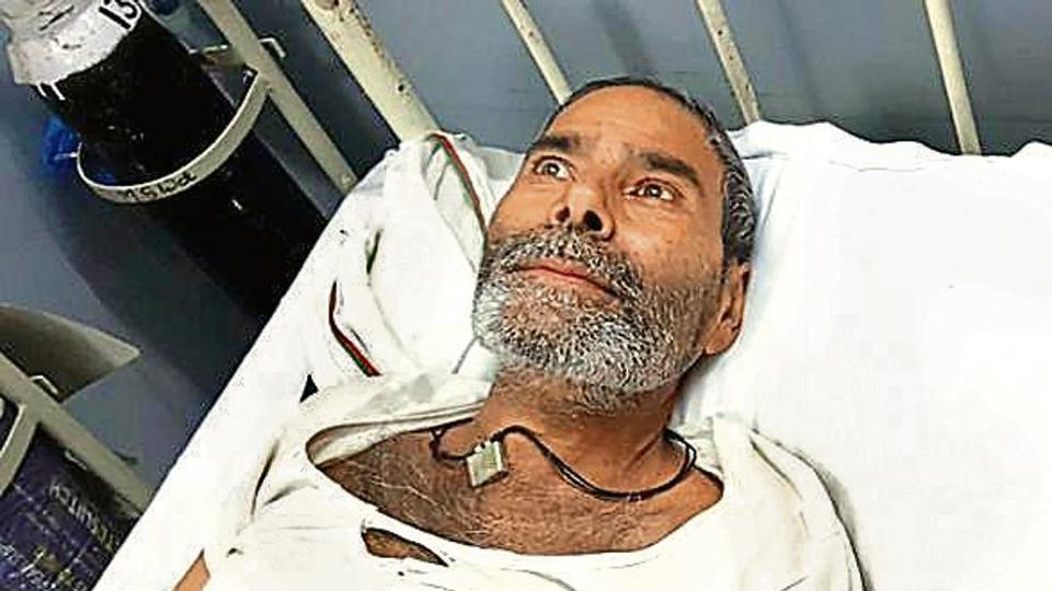 A man from Rajasthan has 75 pins embedded in body, doctors astounded