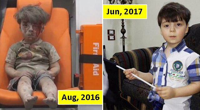 Remember the photograph of Aleppo boy covered in blood and dust? Now He is happy and healthy!