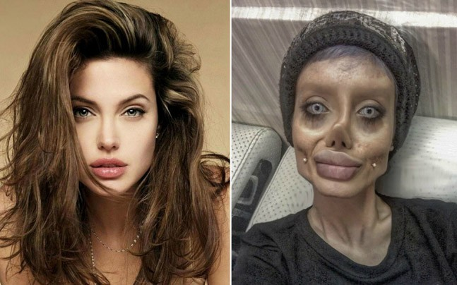 PICS: 19-year-old got 50 surgeries to look like Angelina Jolie. Now trolls are calling her zombie