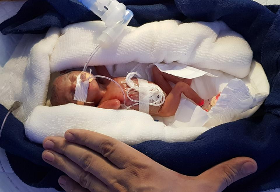 Tiny baby girl born weighing 400 gm survives in Udaipur
