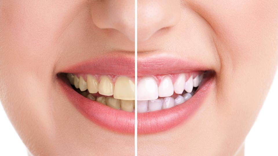 5 Everyday dental mistakes that are making your teeth yellower