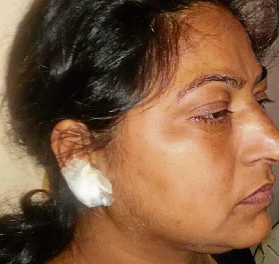 Delhi man tears off woman's ear lobe to steal earrings, she requires plastic surgery