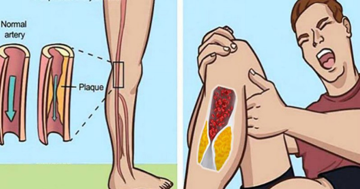 Here Are 5 Warning Signs You Have Blocked Arteries!