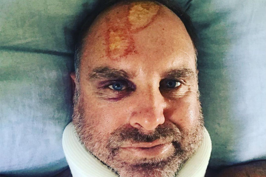 Former Australia Opener Matthew Hayden Suffers Spine Fracture After Freak Surfing Accident