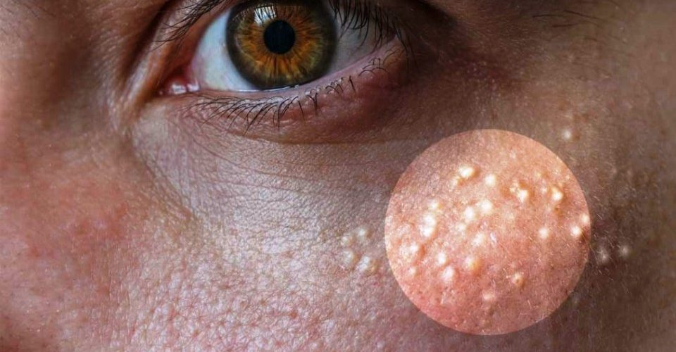These 7 Remedies Can Remove The Milia (Milk Spots) From Your Face