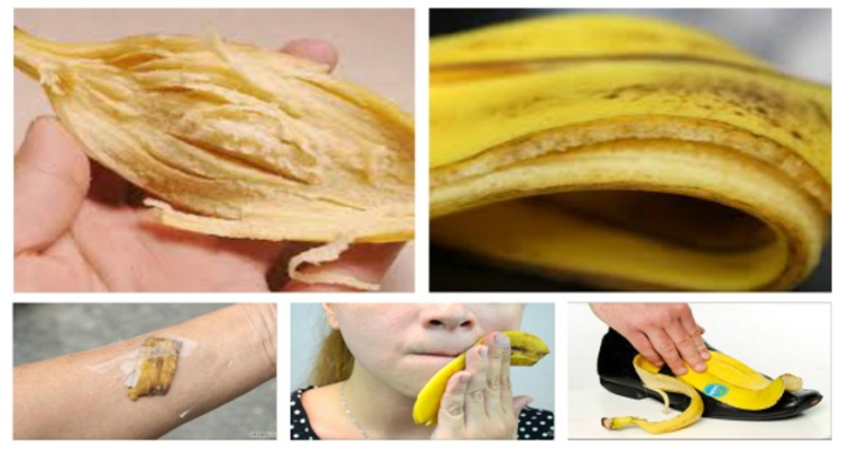 Incredible Purposes Of Banana Peels!