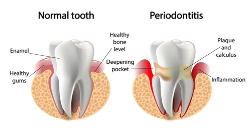 Know the Signs of Poor Gum Health