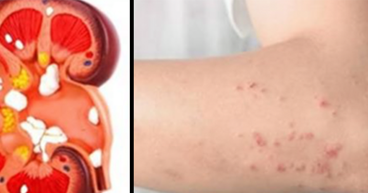 If Your Kidneys Are In Danger, Your Body Will Give You These 12 Signs