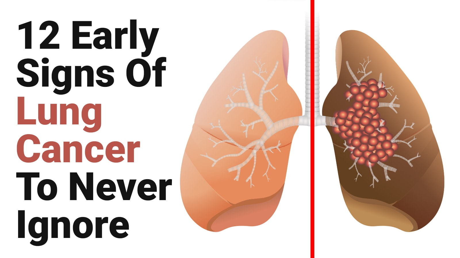 12 Early Signs Of Lung Cancer To Never Ignore