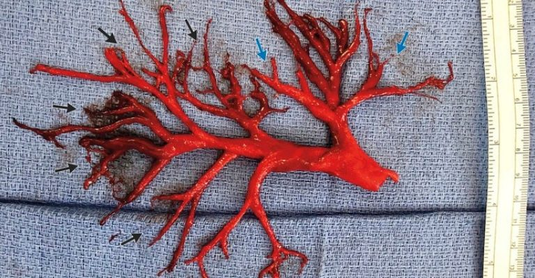 A Man Coughed Up This Bizarre Blood Clot and His Doctors Can