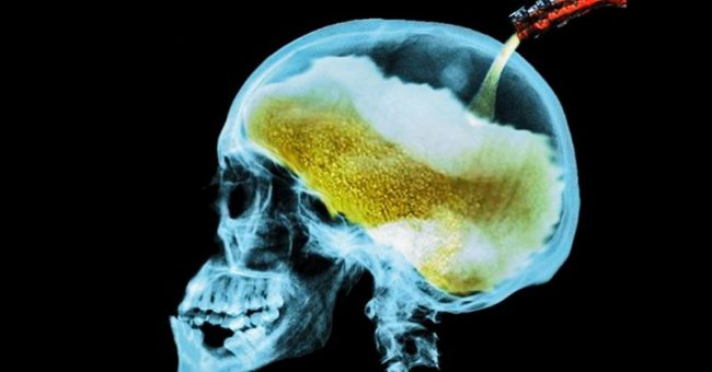 What Alcohol Consumption Does to Your Brain