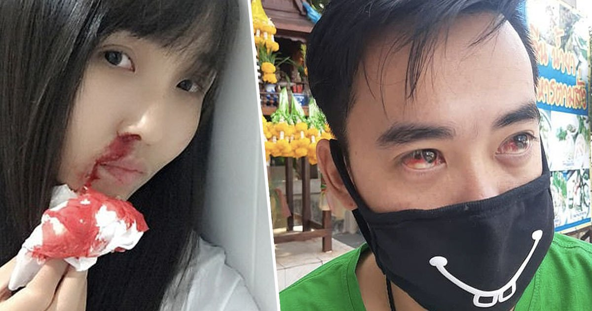 Bleeding Noses And Blood-Red Eyes As Bangkok Battles Toxic Air