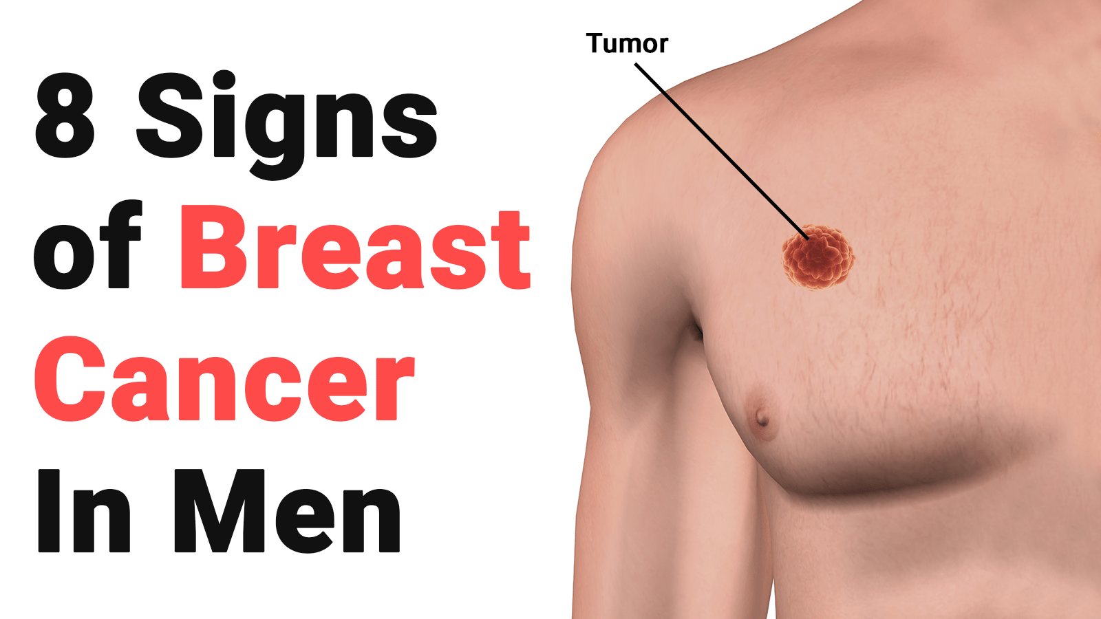 8 Signs of Breast Cancer In Men