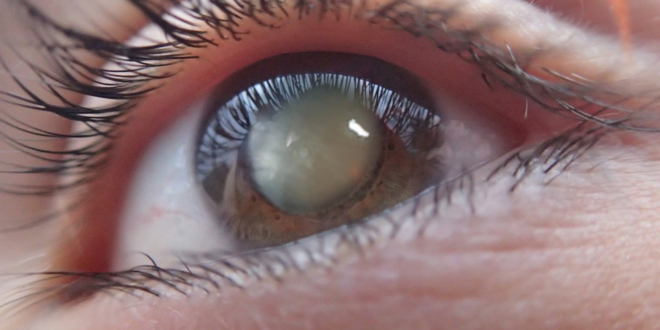 Goodbye Surgery – Scientists Just Made Eye Drops that Dissolve Cataracts