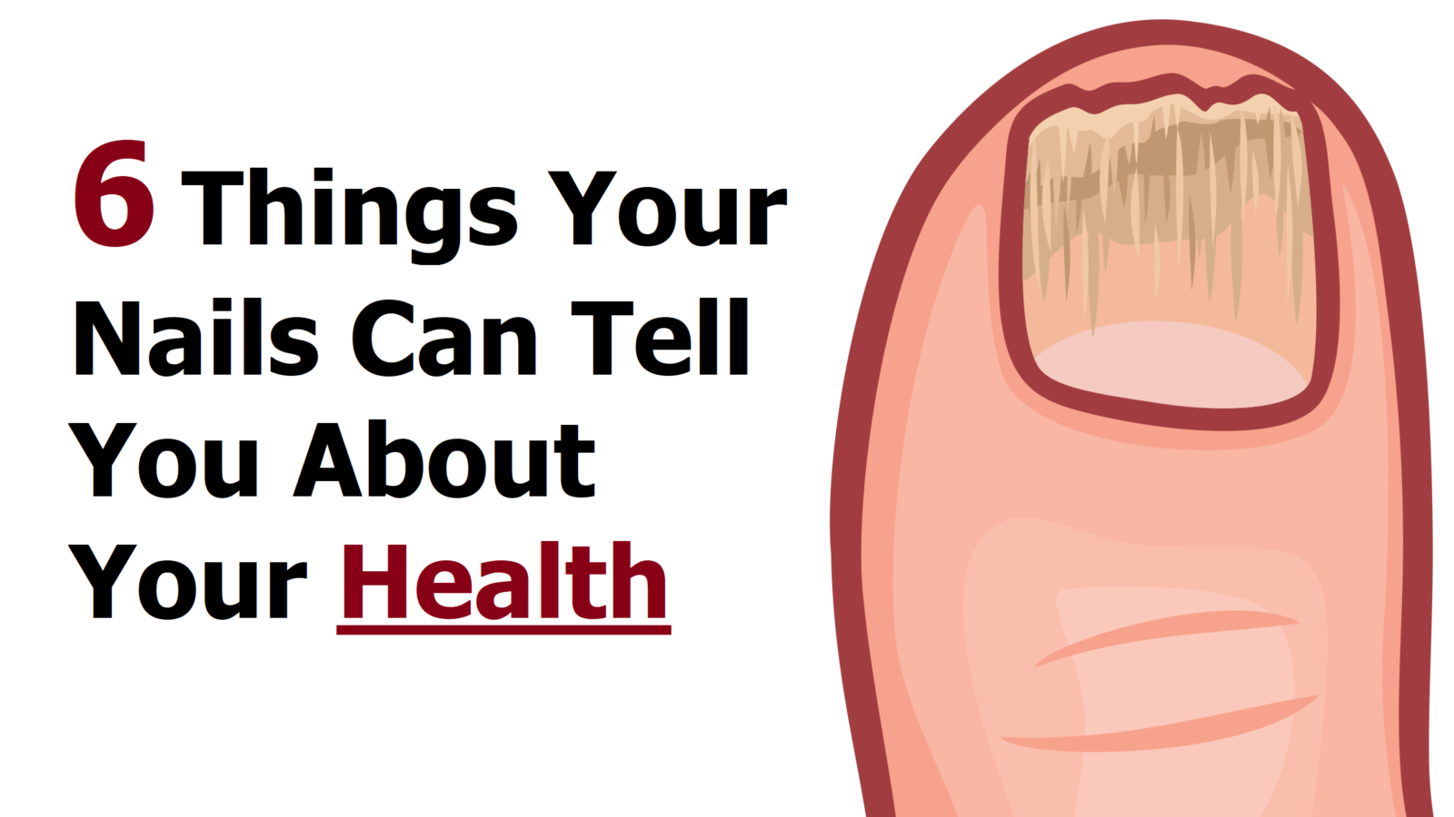 6 Things Your Nails Can Tell You About Your Health