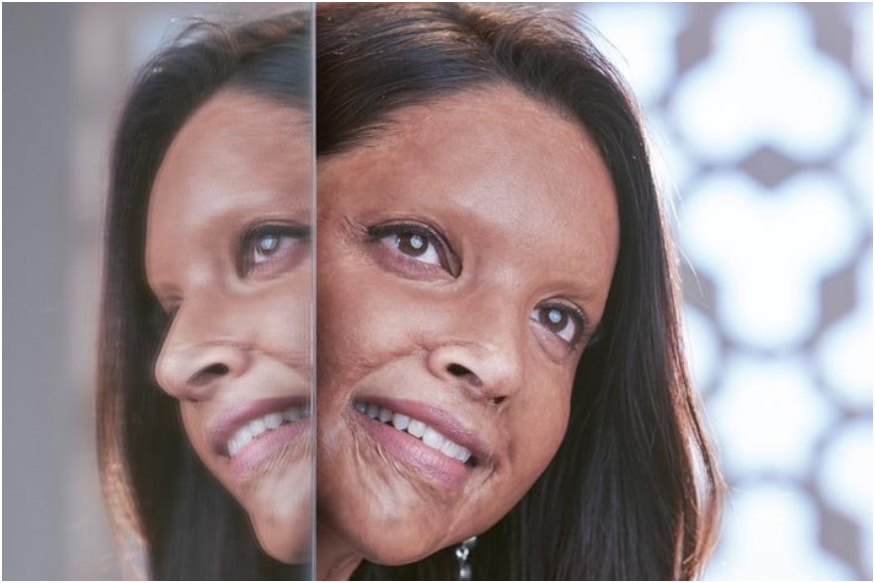 Chhapaak: Deepika Padukone