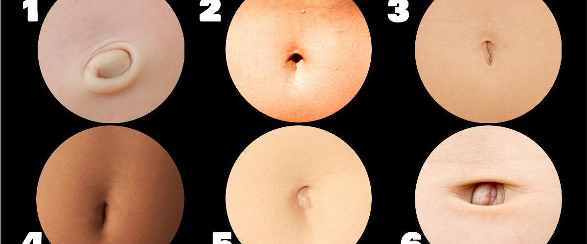Your Navel Shape Can Reveal The Disease You're Suffering From