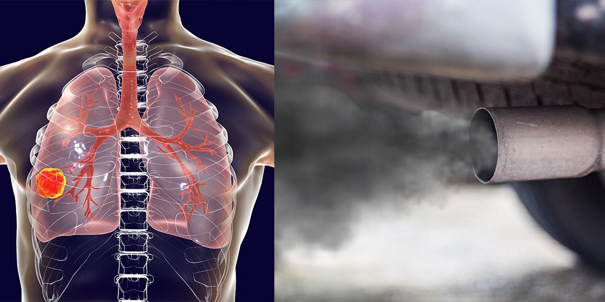 Experts Warn: Pollution Linked to 'Thousands Of Lung Cancer Deaths In Non-Smokers""