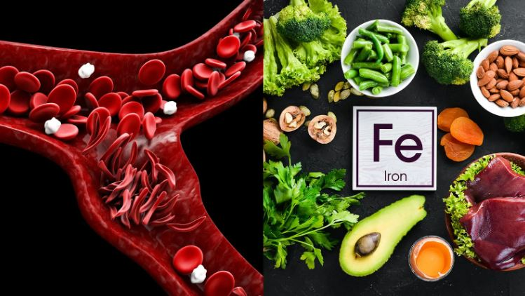 3 Ways To Reverse Iron Deficiency Naturally
