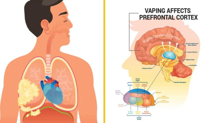Researchers Reveal How Vaping Causes Brain and Lung Damage