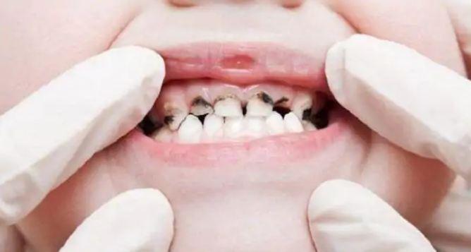 Poor oral health linked to higher risk of liver cancer