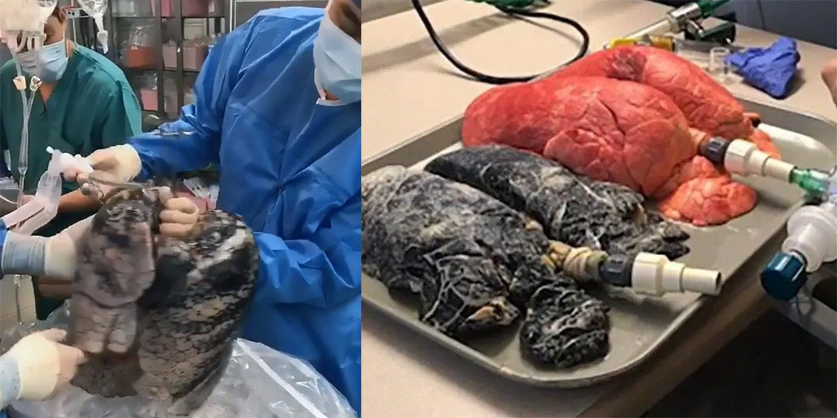 Surgeon Reveals How Horrifying The Human Lungs Look After 30 Years Of Smoking