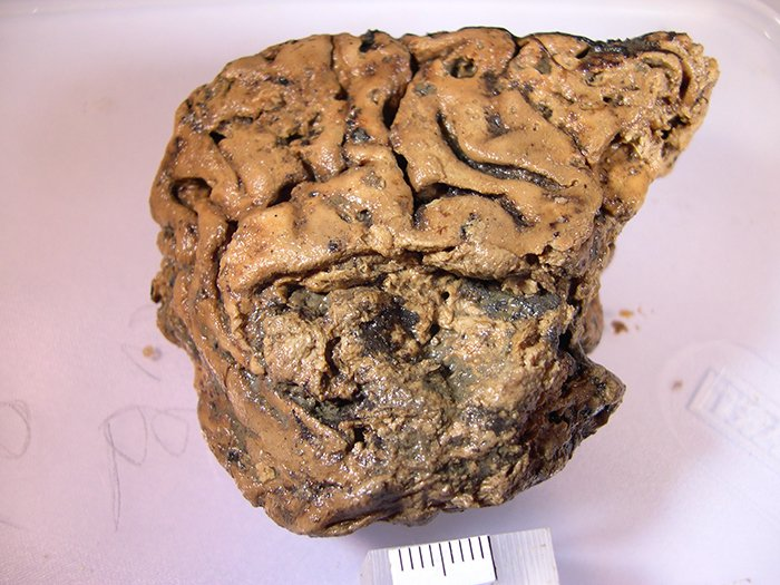 This Human Brain Tissue Survived Intact For 2,600 Years, And We May Finally Know How