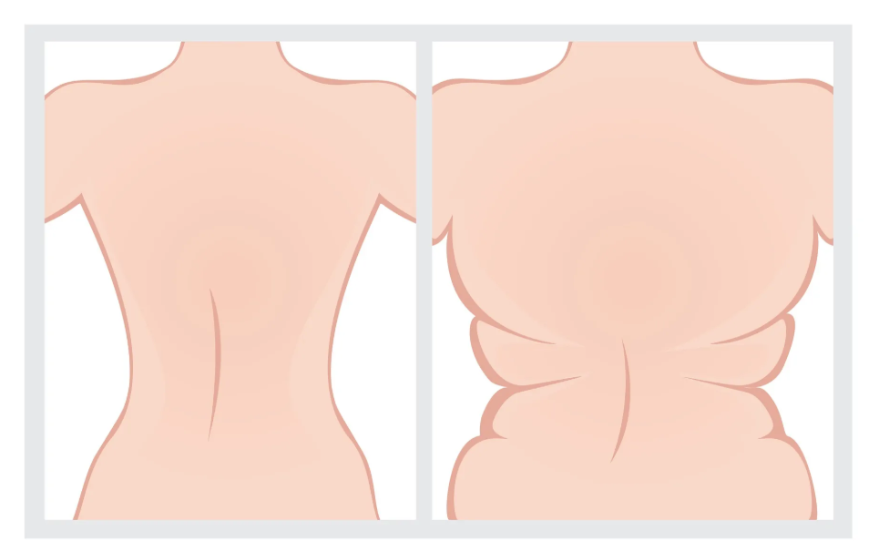 Melt Body Fat By Doing These 4 Exercises Daily
