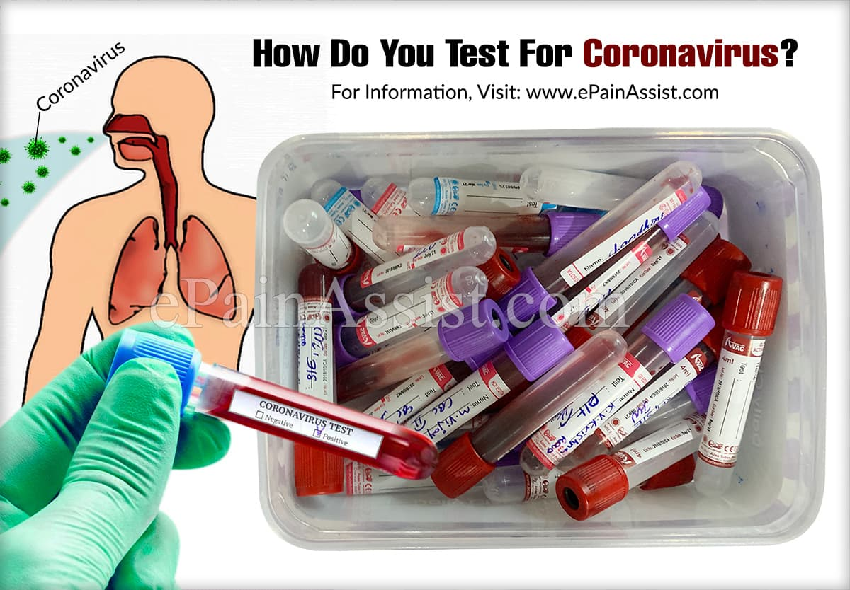 How Do You Test For Coronavirus?