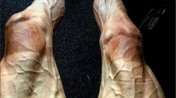 Cyclist's legs after the Tour-de-France