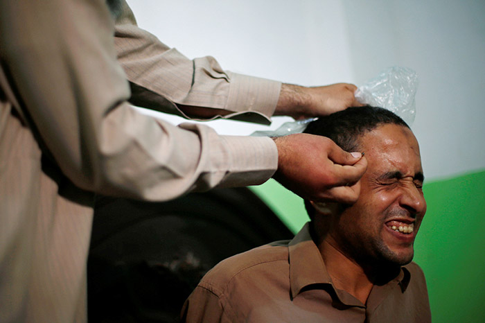 A patient who suffers from nerve problems receives bee-sting therapy by Haj Omar Abulhassan at the treatment room of his home in Cairo, Egypt.