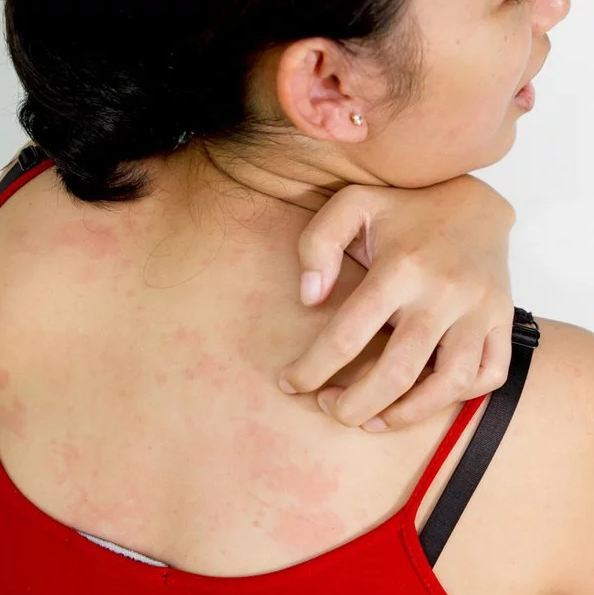 2. Rashes can sometimes be a side effect to certain medicines.
