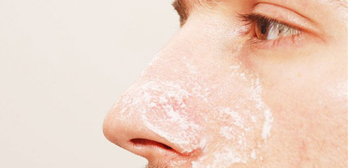 3. With exfoliating properties, baking soda is best to get rid of dead skin cells and clogged pores.