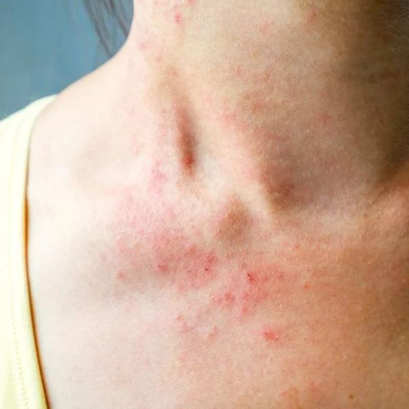4. Eczema is a type of rash that occurs in people as a symptom of asthma or allergies.