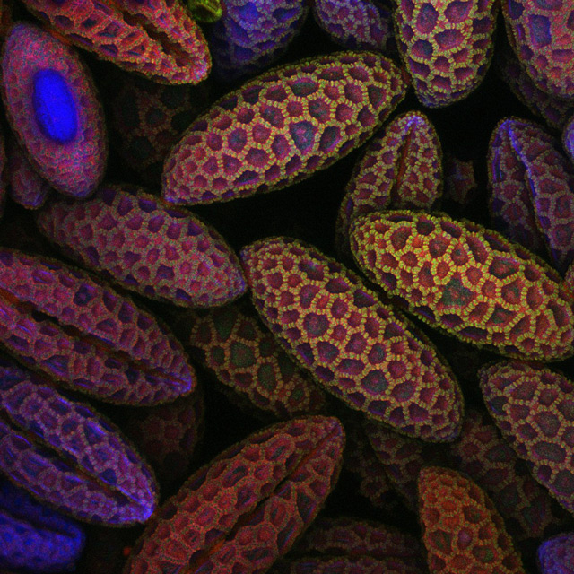 These are spores of lily pollen: