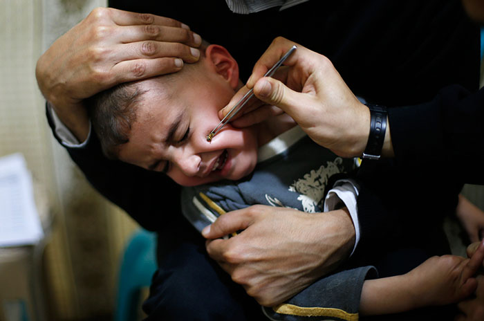 A Palestinian boy suffering from Paranasal sinus reacts as he receives treatment at a bee venom therapy centre in Gaza. The treatment, using the venom of honeybees, is known to be effective for diseases like epilepsy, spinal disorders, hearing problems and nasal allergy, according to the owner of the centre.