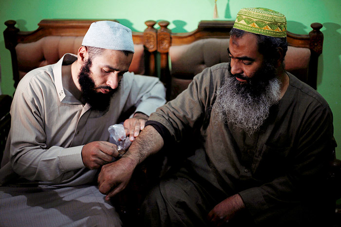 Haj Omar Abulhassan allows one of his bees to sting a patient suffering from arm problems in the treatment room of his home in Cairo, Egypt.