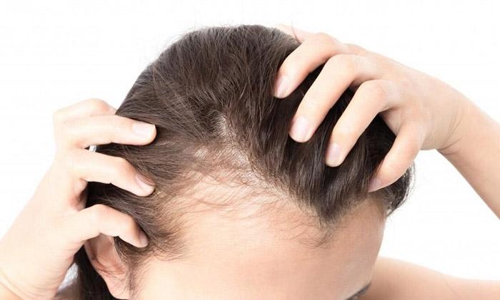 10. Hair loss