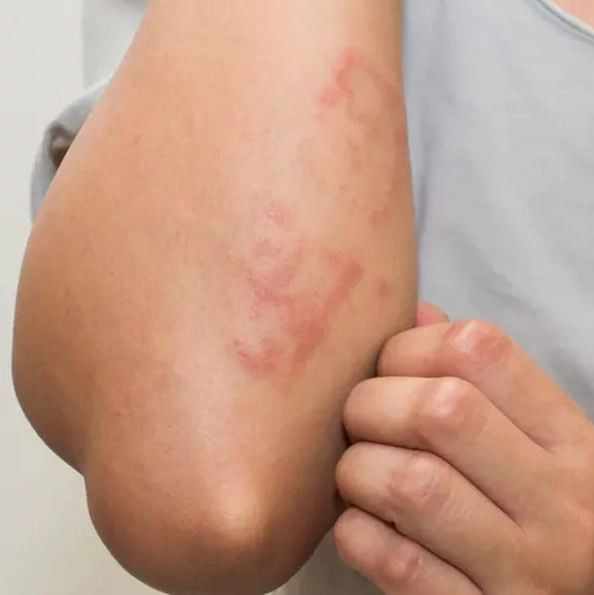 8. The viral respiratory infection Measles can also be a cause of itchy and bumpy rashes.