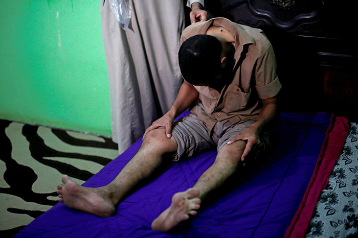 An Egyptian patient, who suffers from nerve problems in his back and neck, receives bee-sting therapy by Haj Omar Abulhassan in the treatment room of his home in Cairo, Egypt.